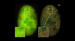 Zobaczyć niewidzialne - tajemnice supermikroskopii