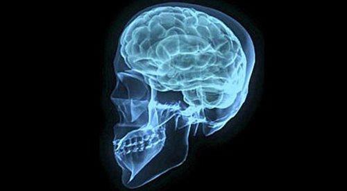 Lekkość bytu vs. manipulacja. Zmagania w ludzkim mózgu